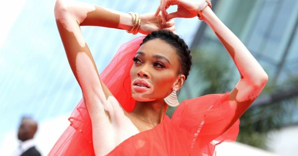 Winnie Harlow : Sensationnelle à Cannes, topless sous une robe transparente