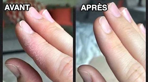 Mains Sèches à Cause Du Froid ? Le Remède Naturel Super Efficace !